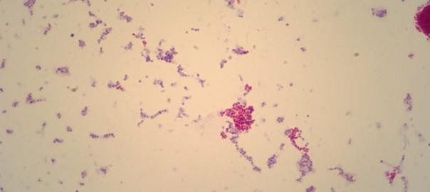 Descubren accidentalmente que el vinagre mata a las bacterias que causan tuberculosis y lepra